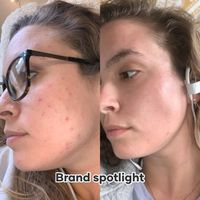 Skincare for acne