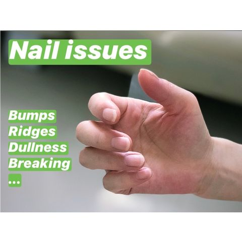 Wanna Fancy Nails? Strengthen Nails First!