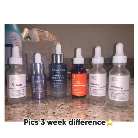Serums (oily/combo acne prone skin)