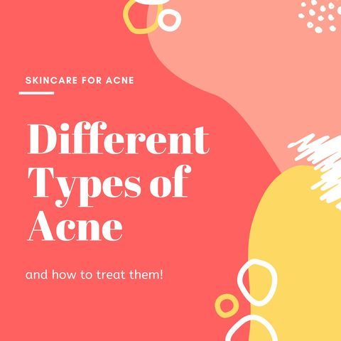 Different Types of Acne & How to Treat Them💥