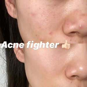 More Fighting-Acne Stories?