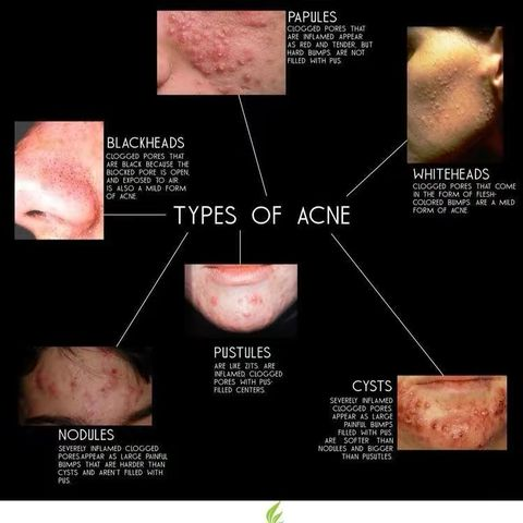 Part #1 of different types of acne (with images)
