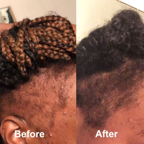 Hair loss caused by hairstyle 🤷🏾‍♀️🤷🏾‍♀️How I deal with it in 4 months