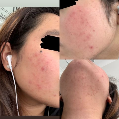 New to Skincare, Need Help
