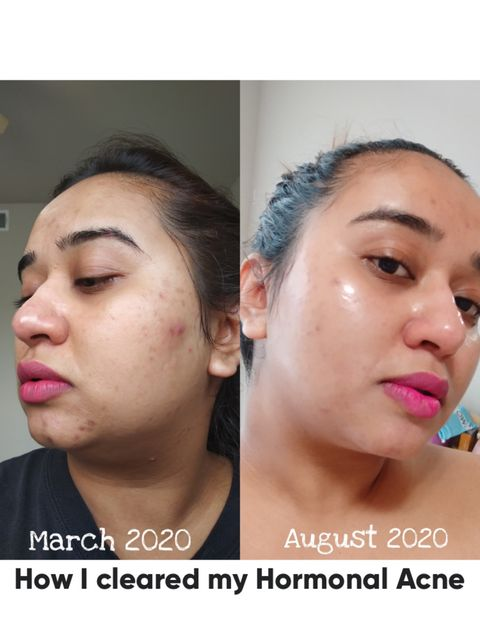How I cleared my Acne - My AM and PM routine