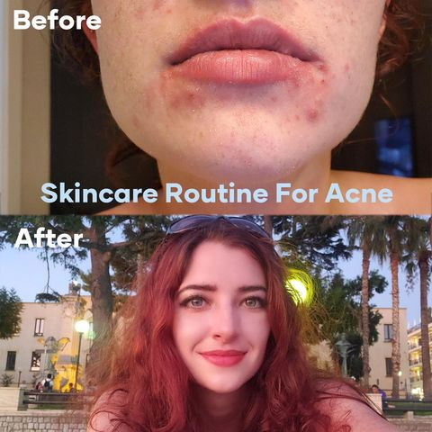 Skincare for Time-Savers – My Lazy Day Skincare Routine for Acne!
