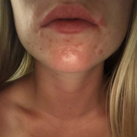 Looking for Recommendations for Hormonal Acne