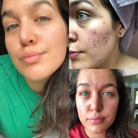 Skincare Story: Acne to Eczema to Glow-Up