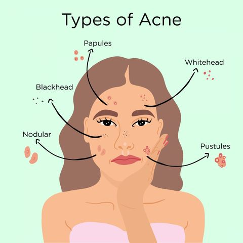 DIFFERENT TYPES OF ACNE AND THEIR FIXES