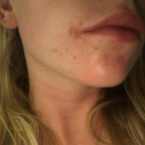 Update Hormonal Acne: 1 Week After Product Swap