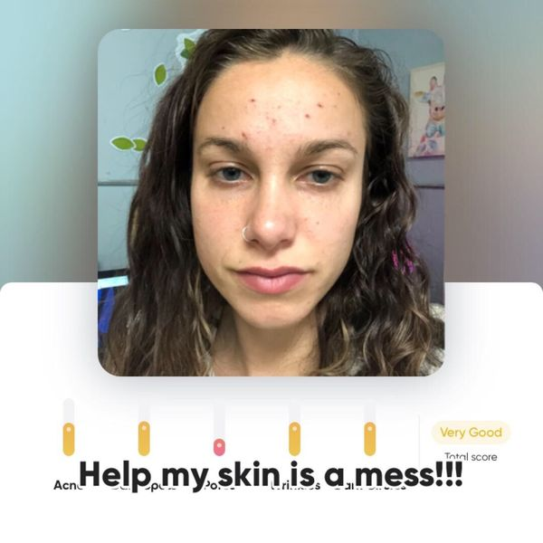 My skin is a mess 😭 HELP! | Cherie
