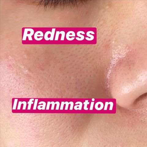 How to Calm Skin Redness and Inflammation
