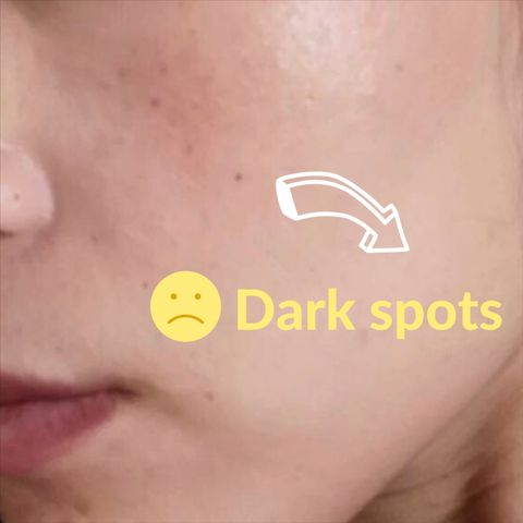 ⚫️Dark spots: what they are and how to overcome them!