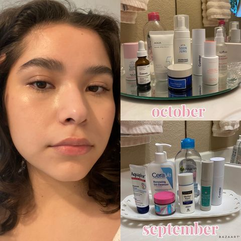 update skincare routine for fungal acne!