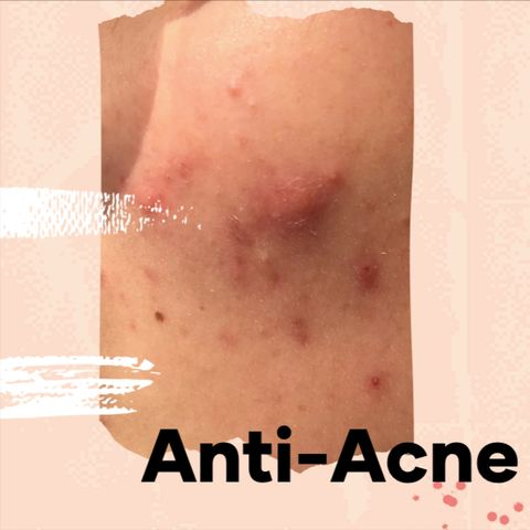 A Dermatologist's Advice on How to Get Rid of Acne