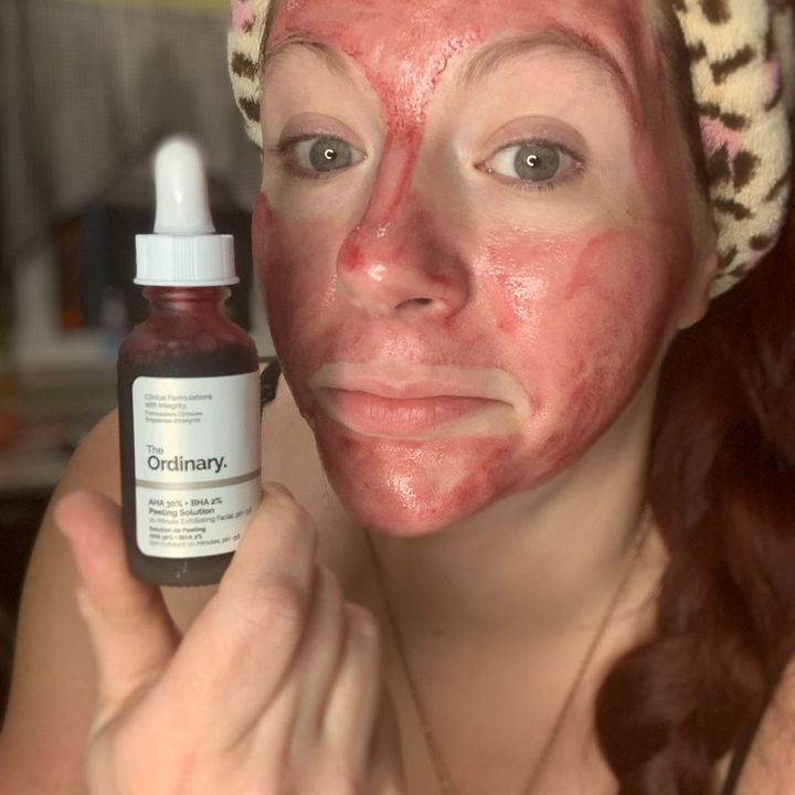 The Ordinary Peeling Solution, How to ⭐️