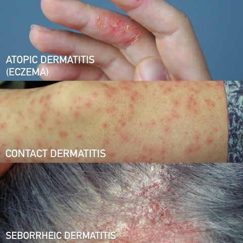 dermatitis: what it is, types, and how to treat
