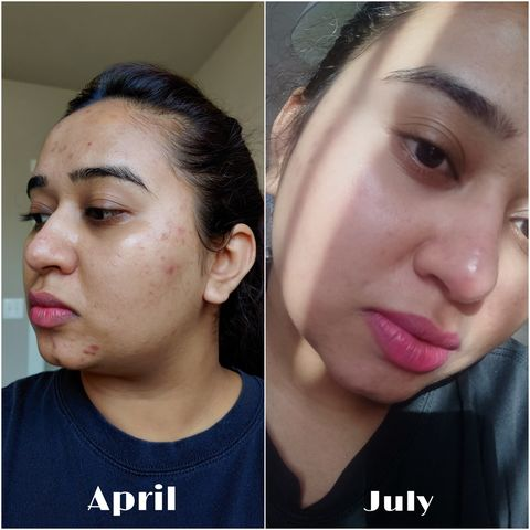 Curology saved my skin! Results are unbelievable