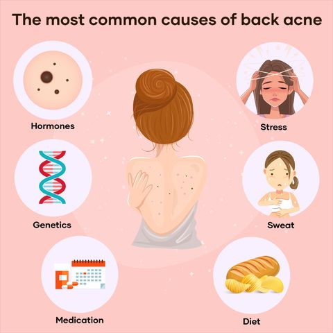 Back Acne: How To Get Rid Of It