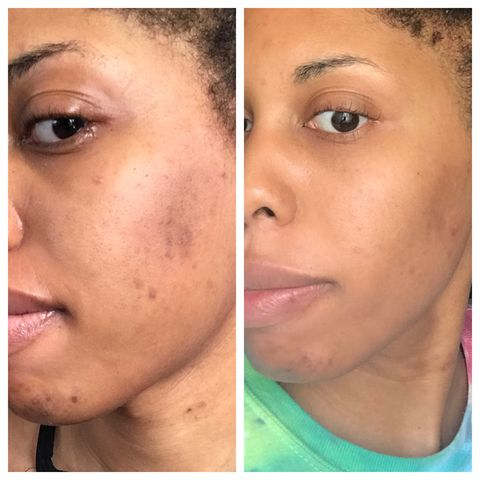 4 months into Hyperpigmentation Journey