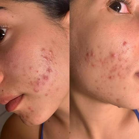 HELP!! Need Advice for Hormonal Acne