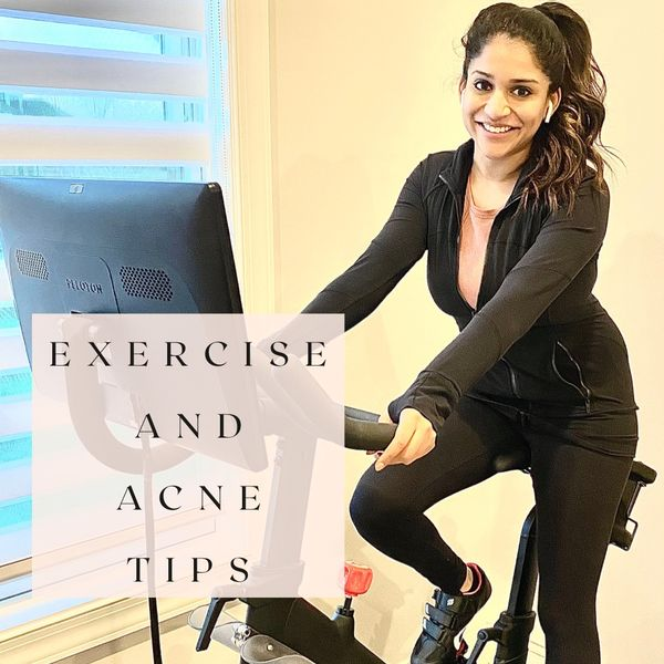 Tips from a derm for exercise induced acne | Cherie