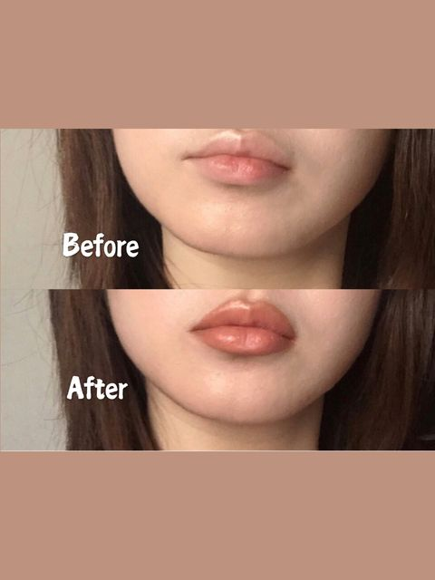 Simple and Safe! You can get fuller lips without injections👄