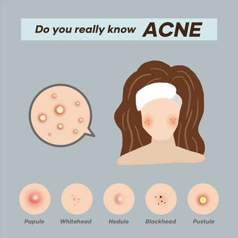 What Causes Acne and What Puts You at Risk for It?