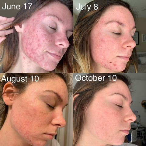 Month 4 of Accutane