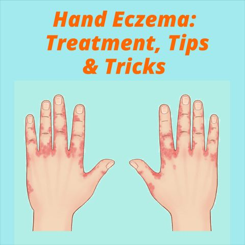 How to Treat Hand Eczema: What Is It and Why Does It Happen?