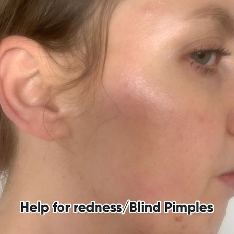 Help treating blind pimples/redness