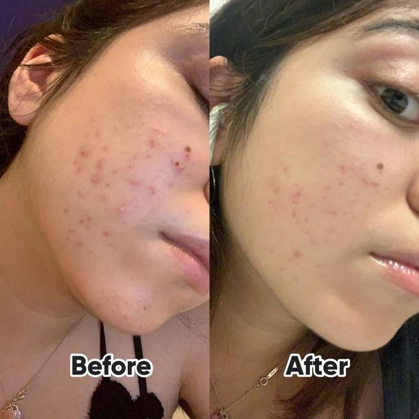 Damaged Skin Barrier + Closed comedones breakout | Cherie