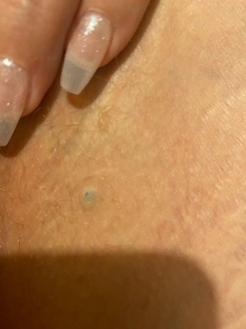 10 year old blackhead!!!!