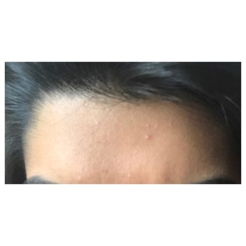 Help! Is this acne?