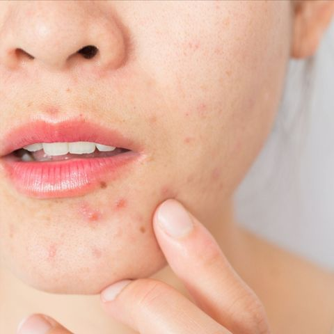 Dealing with hormonal Jaw Acne – What do the Dermatologists Say?
