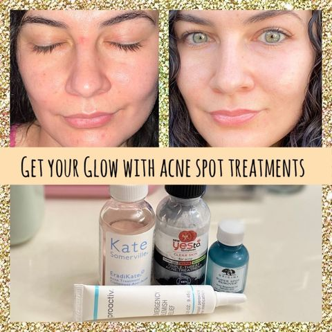 BEST Acne Spot Treatments and How They Work