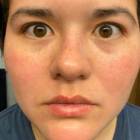 Recommendations for large pores?