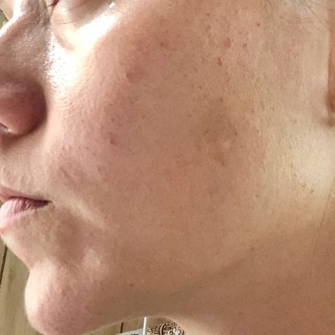 Rosacea/enlarged pores/blemishes