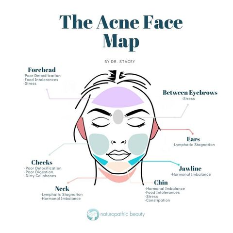 THE ACNE FACE MAP 🗺