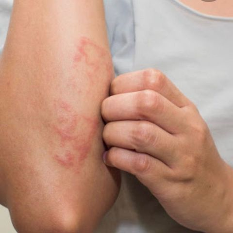 How can I help my eczema, dry, itchy skin?