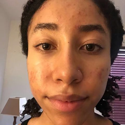 Week 4 of Tretinoin and Spirinolactone Journey