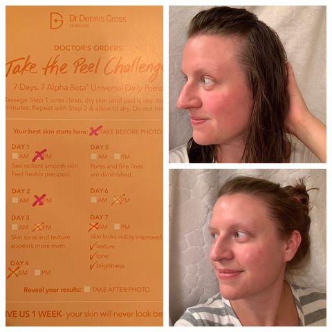 Hormonal Acne Redness Reduced by Chemical Peel