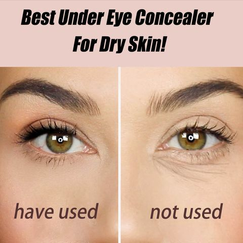 The Best Under Eye Concealer for Dry Skin: Slay a lot and moisturize!