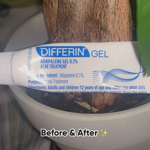 Why Differin Gel worked for me !