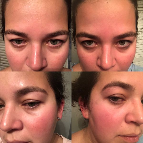 Before and After sensitive skin routine  | Cherie