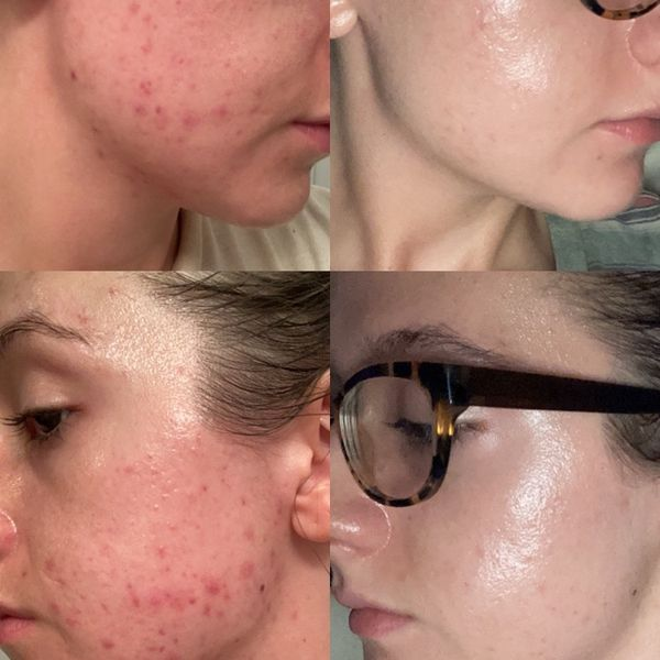 Skincare advice from my derm | Cherie