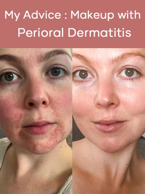 "First of all perioral dermatitis is a sterile ""disease"" so it will not contaminate your... 