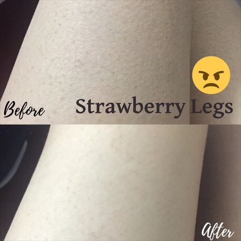 Strawberry Legs?? Let's Talk About Pores on Your Legs!