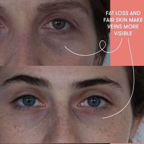 Vascular Dark Circles VS Pigment Dark Circles