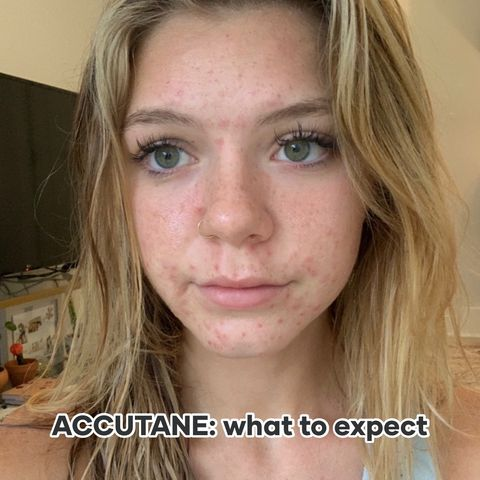 ACCUTANE: what to expect